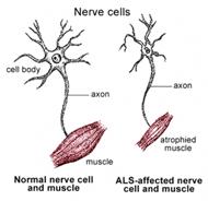 Jagga Alluri Md Motor Neuron Disease